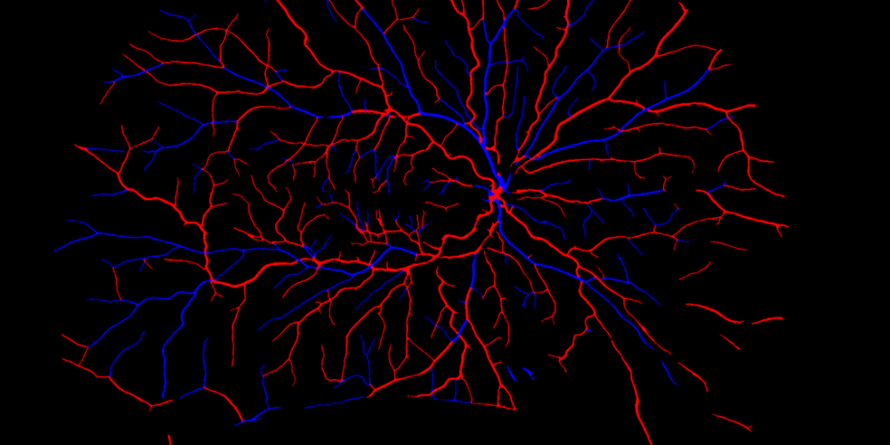 Optical coherence tomography imaging technology